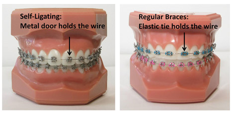 Cost of adult braces
