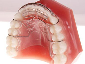 Retainers for Moving Teeth - West Valley City Salt Lake UT